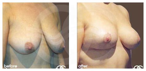 How women lose weight in the breasts jpg 828x405