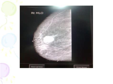 breast leasions jpg 638x479