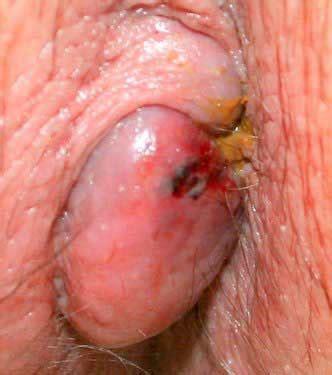 anal hemmroids jpg 332x375